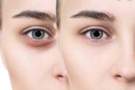 راهکارهای طبیعی برای رفع کردن تیرگی دور چشم