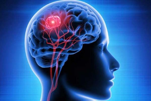 کدام تومورهای مغزی عود می نمایند؟