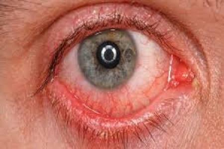 اشک چشم مبتلایان کرونا، آلوده به ویروس است