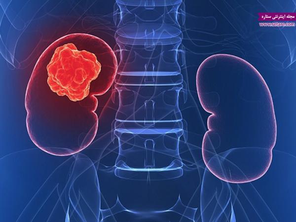 علائم سرطان کلیه چیست؟